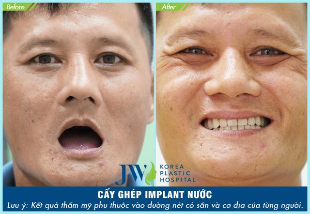 Trải nghiệm công nghệ cấy ghép Implant Thế giới tại Việt Nam - Ảnh 4.