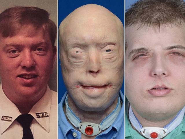 Kỳ tích ghép mặt và những cuộc đời được cứu vớt - Ảnh 4.