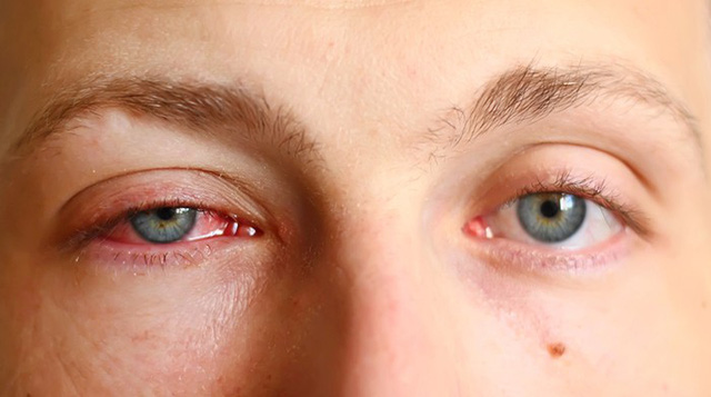 Kết quả hình ảnh cho đau mắt đỏ