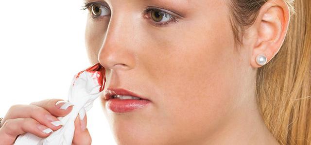 Cách trị chảy máu mũi bằng bài thuốc đông y