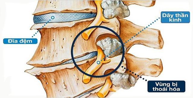 Thoái hóa cột sống - nguồn cơn gây ra các bệnh xương khớp - Ảnh 1.