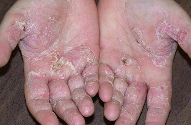 Bệnh tổ đĩa ở đôi bàn tay và đôi bàn chân - Ảnh 1.
