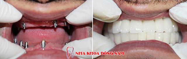 Kỹ thuật cấy ghép răng giả cùng lúc nhổ răng thật - Ảnh 5.