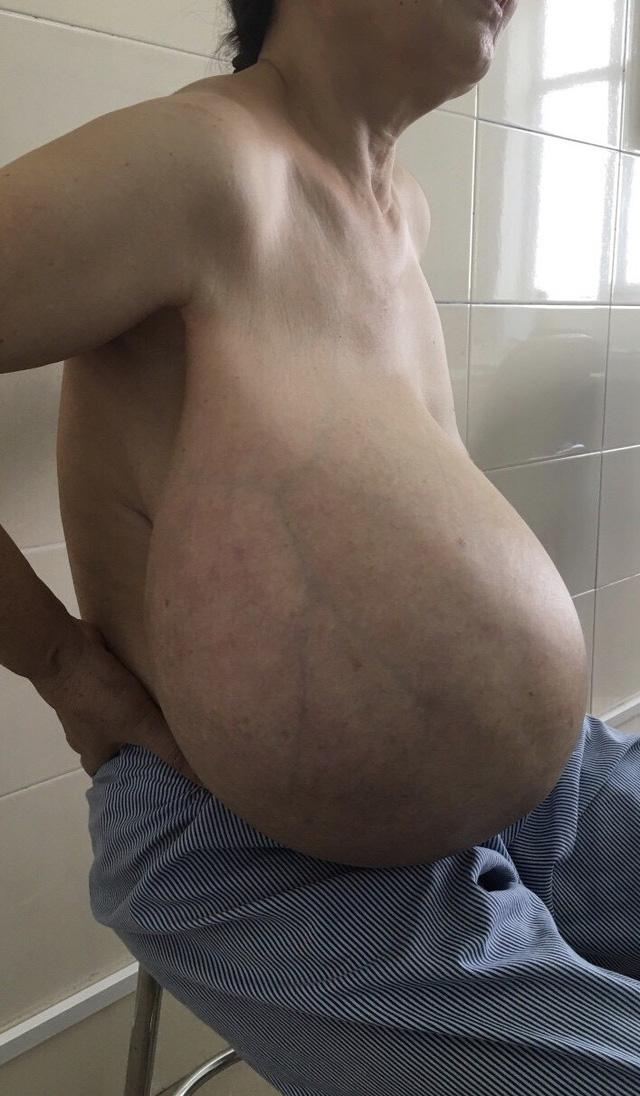 Nữ bệnh nhân có khối u ngực to vượt mặt - Ảnh 1.