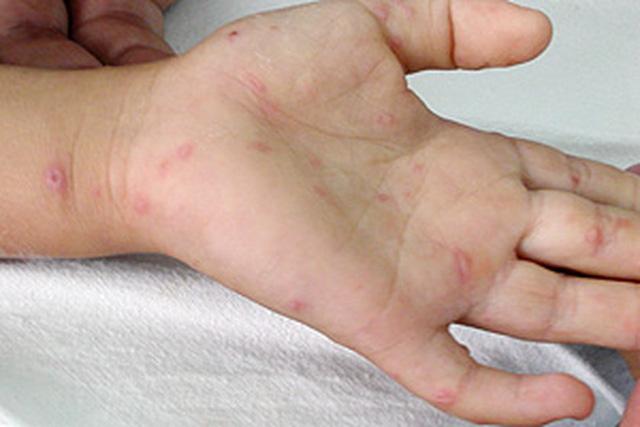 Chăm sóc và điều trị bệnh tay - chân - miệng ở trẻ - Ảnh 1.