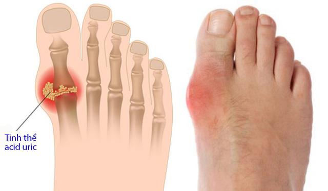 Cách phòng chống bệnh gout - Ảnh 1.