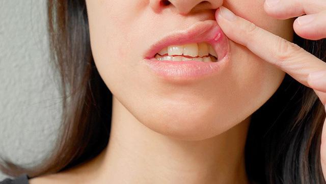 Các bệnh trong khoang miệng thường gặp - Ảnh 1.