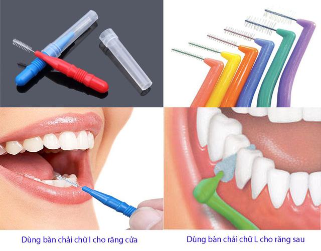 Vệ sinh răng bằng bàn chải kẽ - Ảnh 1.