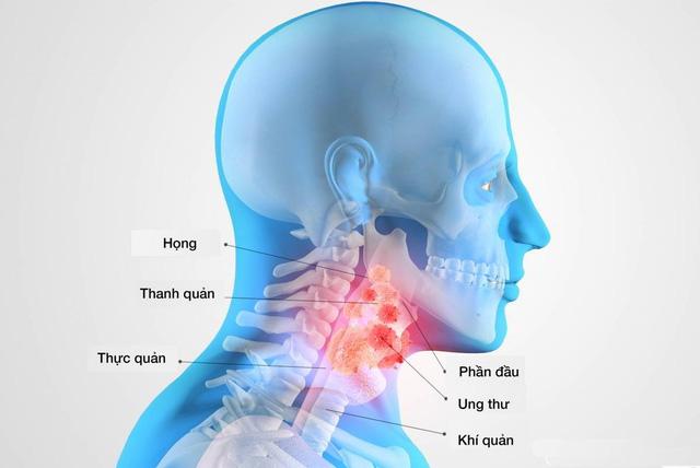 Tai ù có thể do ung thư vòm họng - Ảnh 1.