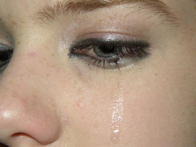 Chảy nước mắt sống - nguyên nhân và cách xử trí - Ảnh 1.