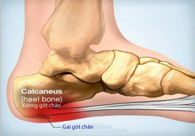 Gai xương gót chân - Ảnh 1.