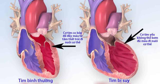 Những cách để phòng tránh suy tim - Ảnh 1.