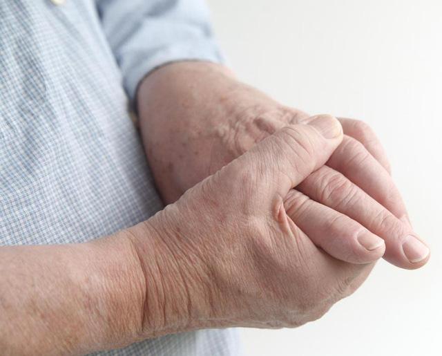 Khi nào tê nhức chân tay là bệnh lý? - Ảnh 1.