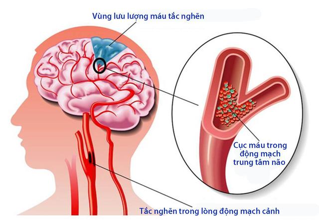 Không nên chủ quan với bệnh tai biến mạch máu não nhẹ - Ảnh 1.