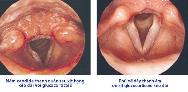 Tổn thương thanh quản do glucocorticoid xịt họng - Ảnh 1.
