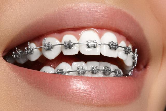 Niềng răng – một cách làm đẹp - Ảnh 1.