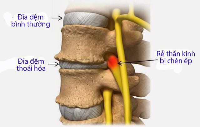 Bệnh đau thắt lưng - Ảnh 1.