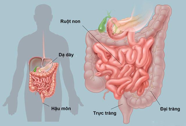 12 nguyên nhân gây đau bụng - Ảnh 1.