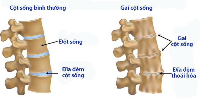 Nguyên tắc dinh dưỡng của bệnh gai cột sống - Ảnh 1.