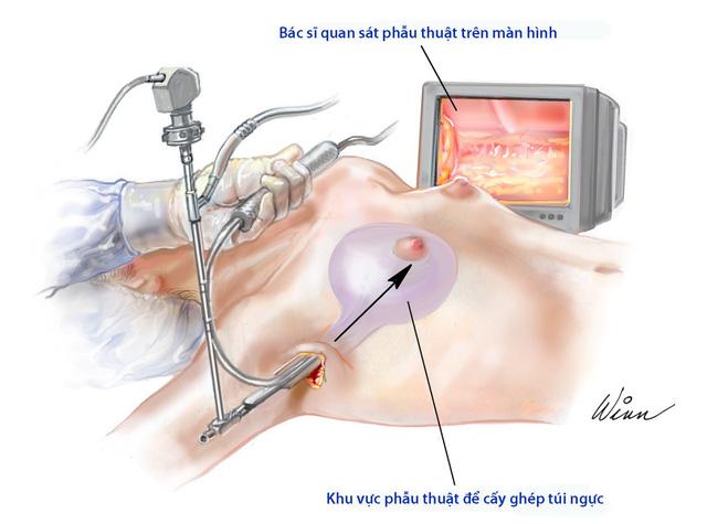 Phẫu thuật nâng ngực - Ảnh 1.