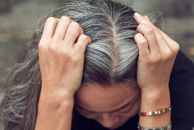 Bệnh tóc bạc sớm: Nguyên nhân và cách điều trị - Ảnh 1.