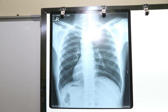 Nam bệnh nhân phủ tạng đảo ngược ở Hà Nội: tim bên phải, gan bên trái - Ảnh 1.