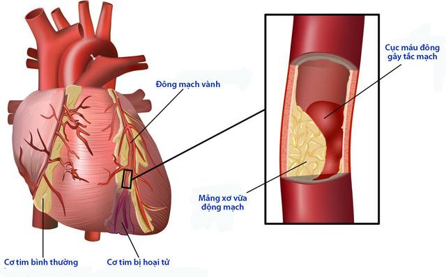 Biến chứng tim mạch của bệnh đái tháo đường - Ảnh 1.