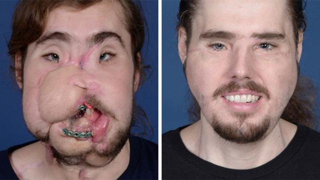 Sửa khuôn mặt biến dạng hoàn toàn, chàng trai Mỹ đã cười lại được - Ảnh 1.