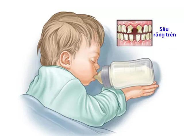 Phòng ngừa hội chứng sâu răng do bú bình - Ảnh 1.