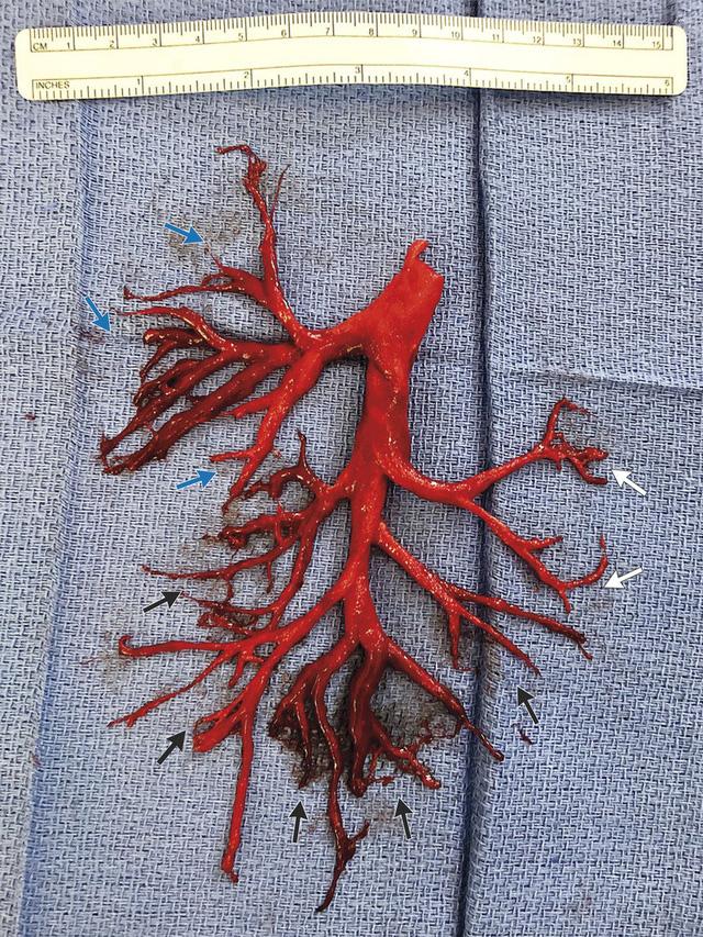 Bệnh nhân Mỹ ho ra cục máu đông có hình cây phế quản - Ảnh 1.