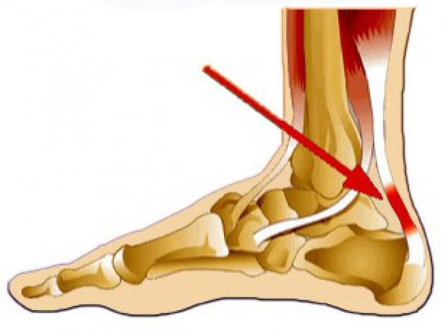 Đau gót chân (heel pain) - Ảnh 1.
