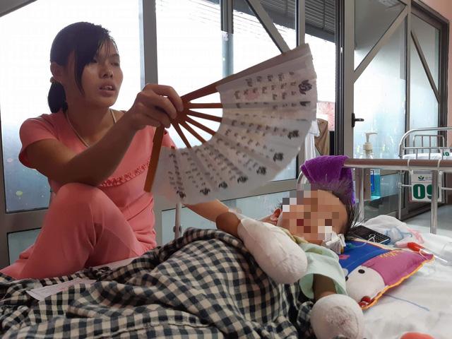 Bé gái 3 tuổi phải cắt cụt hai tay sau nhiễm khuẩn huyết - Ảnh 1.