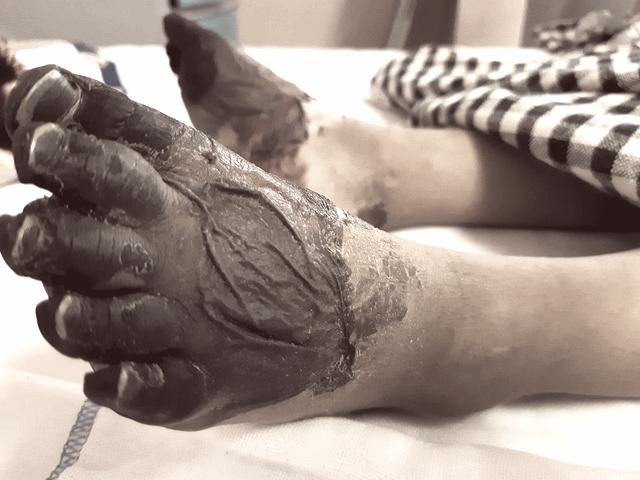Bé gái 3 tuổi phải cắt cụt hai tay sau nhiễm khuẩn huyết - Ảnh 2.