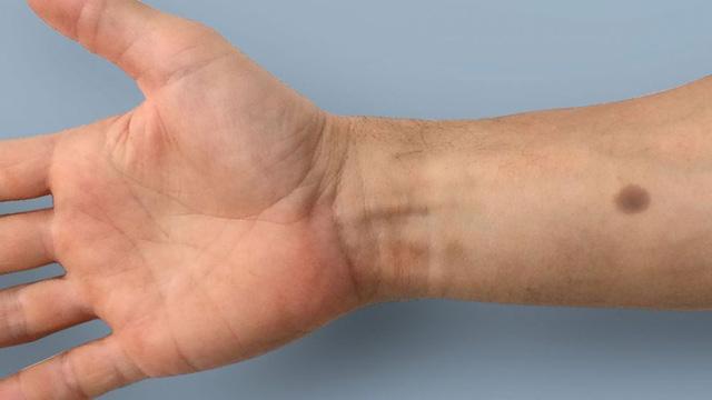 Cấy nốt ruồi dưới da để phát hiện sớm ung thư - Ảnh 3.