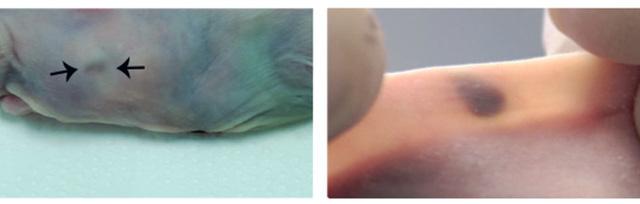 Cấy nốt ruồi dưới da để phát hiện sớm ung thư - Ảnh 2.