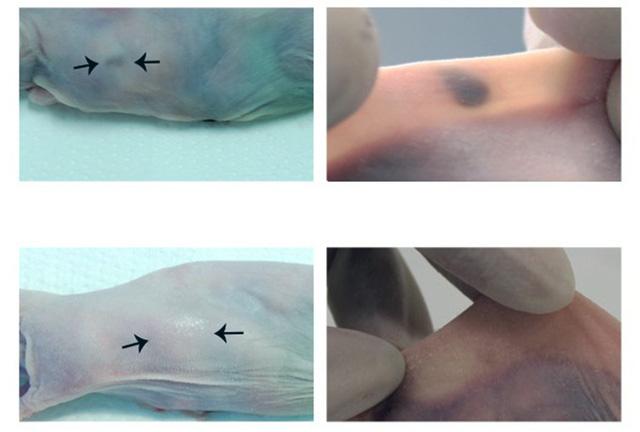 Cấy nốt ruồi dưới da để phát hiện sớm ung thư - Ảnh 1.