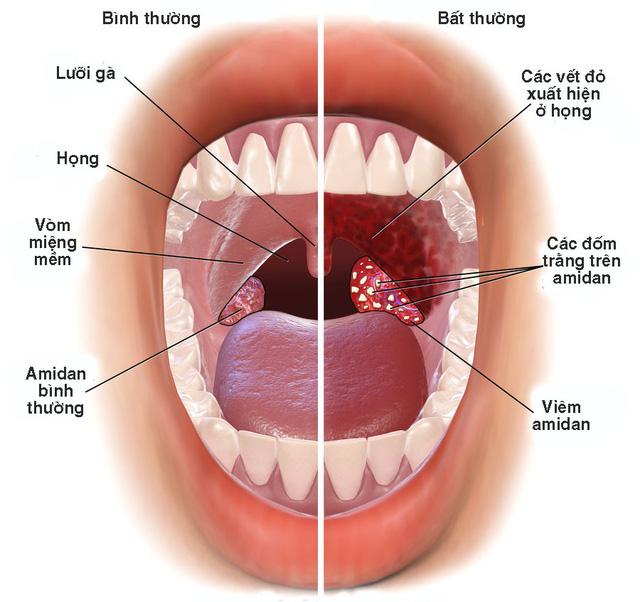 Kết quả hình ảnh cho nguyên nhân gây viêm họng mạn tính