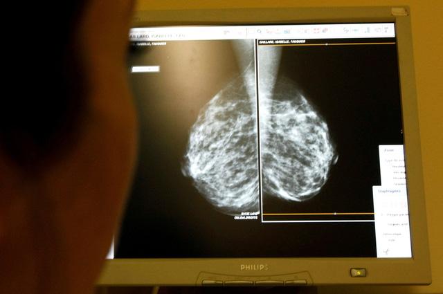 70% ca ung thư vú giai đoạn đầu không cần hóa trị sau phẫu thuật - Ảnh 1.