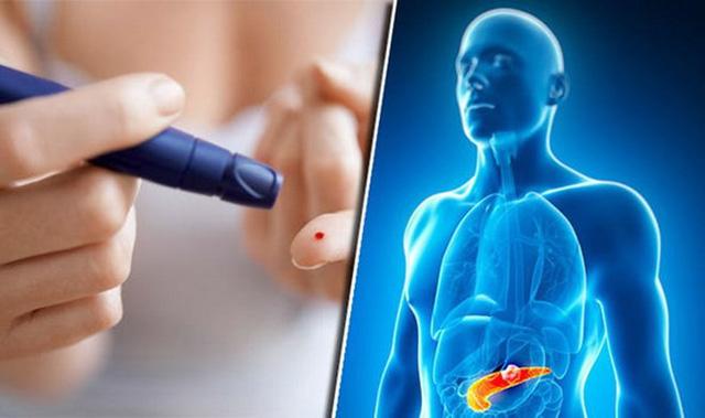 Ô nhiễm không khí làm tăng nguy cơ mắc bệnh tiểu đường - Ảnh 1.