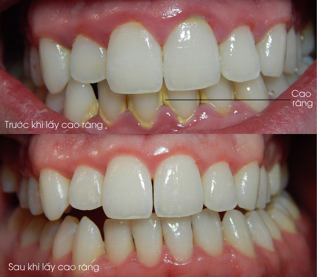Tại sao phải lấy cao răng? - Ảnh 1.