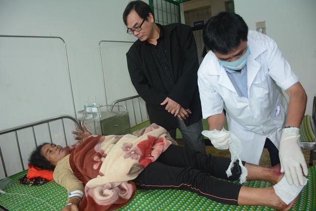 Một học sinh mắc hội chứng viêm da dày sừng tay, chân tử vong - Ảnh 2.
