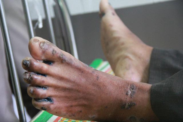 Một học sinh mắc hội chứng viêm da dày sừng tay, chân tử vong - Ảnh 1.