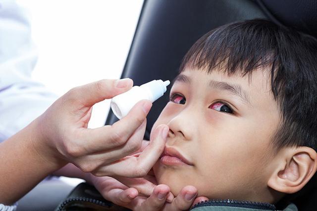 Bệnh về mắt ở trẻ nhỏ