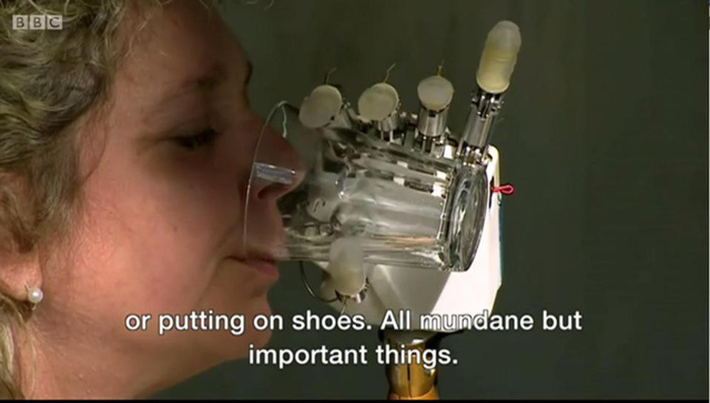 Nữ bệnh nhân được lắp tay nhân tạo với cảm giác thật - Ảnh 1.