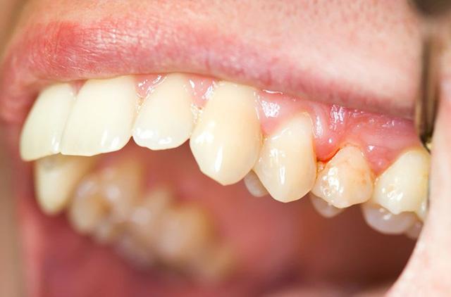 Image result for Bên cạnh đó, việc điều trị của bệnh răng