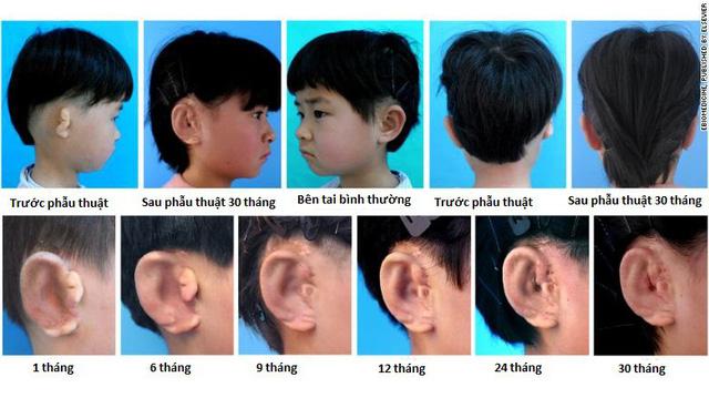 Trung Quốc nuôi và cấy ghép thành công tai từ tế bào sụn - Ảnh 1.