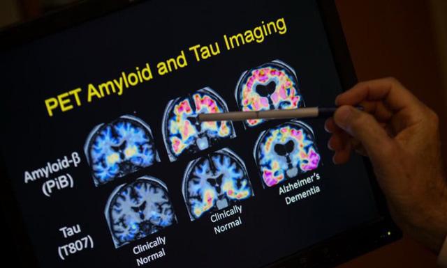 Có thể trị bệnh Alzheimer mà không cần đến thuốc - Ảnh 1.