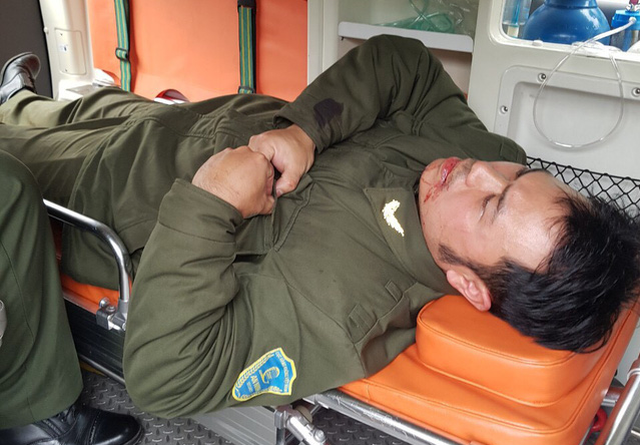 Nhân viên an ninh sân bay Nội Bài bị đánh gãy 4 răng - Ảnh 1.