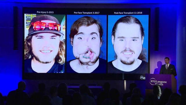 Ca ghép mặt kỳ tích nhờ công nghệ in 3D - Ảnh 1.