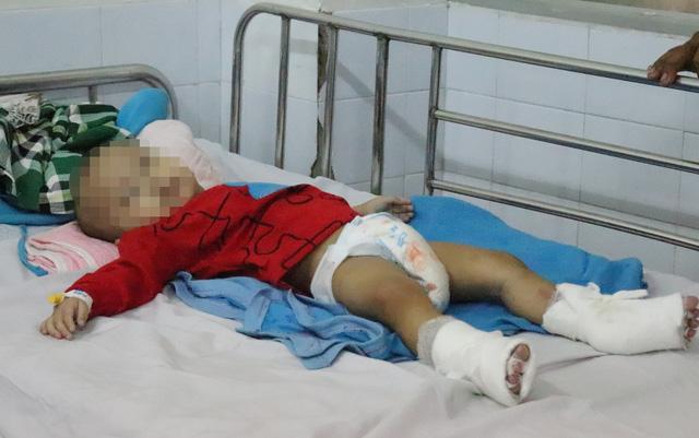 Bệnh viện Nhi đồng 1 liên tục cấp cứu trẻ phỏng nước sôi, nổ bình gas - Ảnh 1.